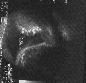 Ultrasound Showing Benjamin S Hair 1